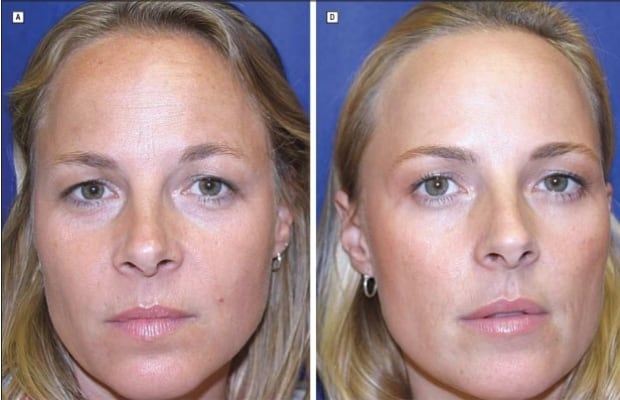 Long-Term Effects of Botulinum Toxin Type A  (Botox) on Facial Lines Twin Study
