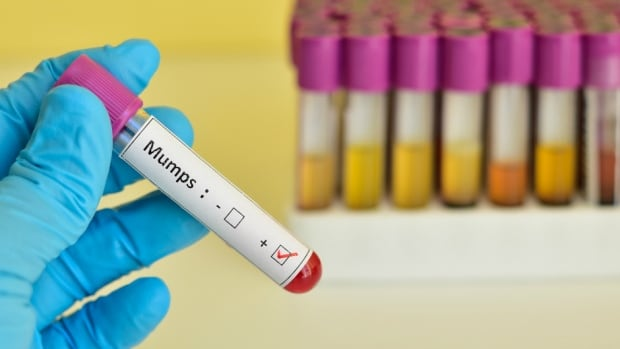 Toronto Public Health said 28 cases of mumps are now confirmed throughout the city, including three cases at three different schools.
