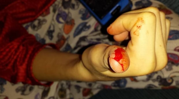 Sliced thumb in Halloween candy