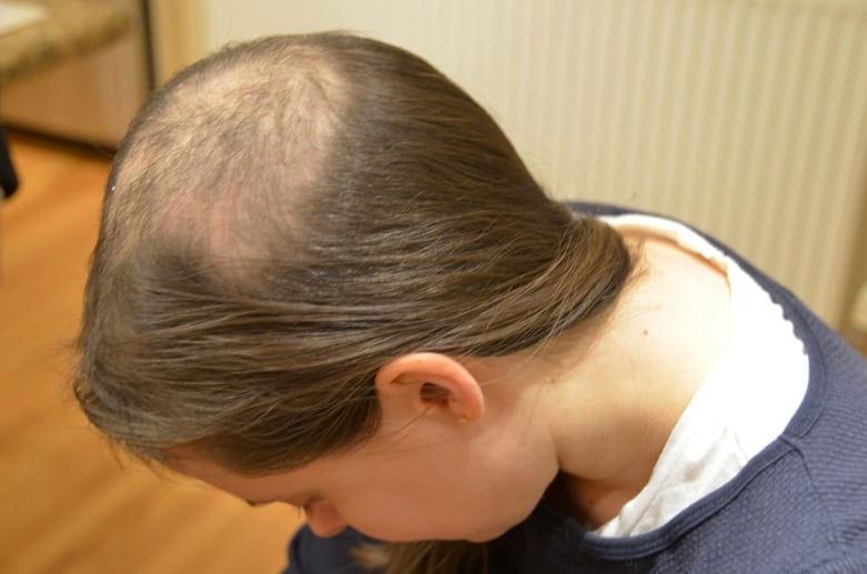The Truth About Trichotillomania The Hair Pulling Disorder Cbc Life