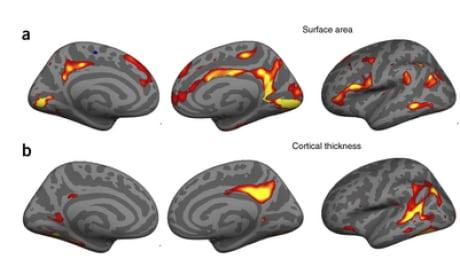 Brain changes in new mothers - Hoekzema et al 2016