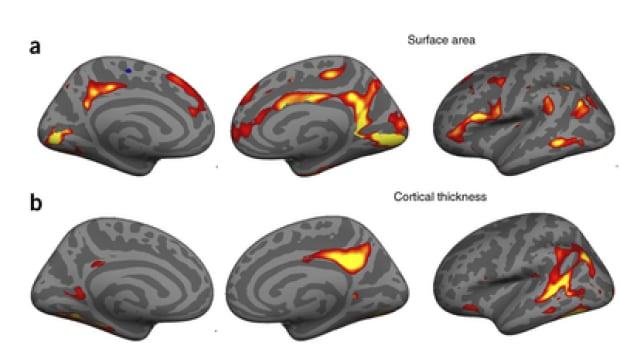 Red and yellow areas denote decreases in brain surface area and cortical thickness from pre- to post-pregnancy in a new study of 25 women who gave birth for the first time. The study was limited by its size and the lack of detail on when exactly the changes take place, and why.