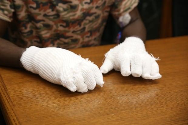 Seidu Mohammed hands