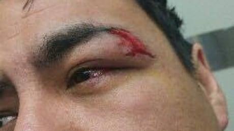 Peter R. Bignell's injury