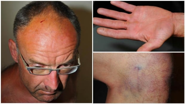 A photo collage shows bruises on Douglas Garland's head and face, hand and knee, as photographed by Calgary police after his arrest.
