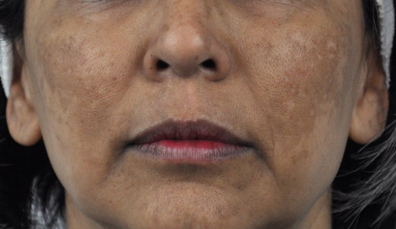 Sudden freckles? Or Melasma? A primer on the skin condition you just