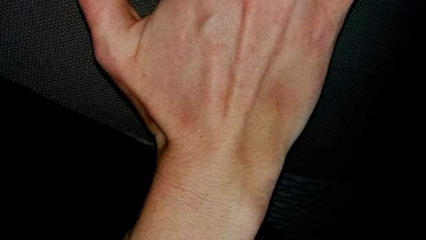 Photo of Kira della Stua's bruised hand after an alleged assault.