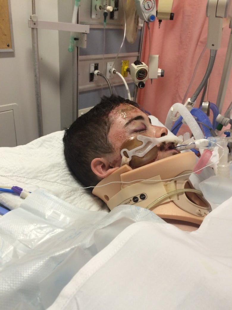 Punishment won't fit crime, says father of brain-injured man