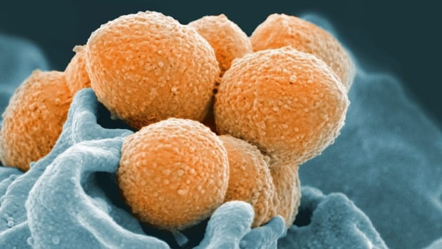 An electron microscope image of Group A Streptococcus (orange) during interaction with a human neutrophil, a type of white blood cell (blue).  The same bacteria that cause simple strep throat sometimes trigger bloodstream or flesh-eating infections.