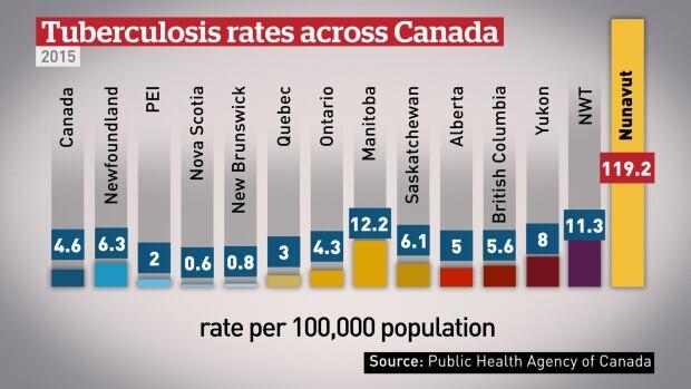 Tuberculosis rates