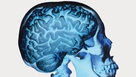 Bias Brain