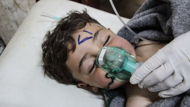 A Syrian child receives treatment at a field hospital after a chemical attack in Syria's Idlib province, on Tuesday.