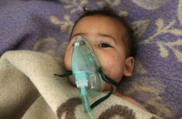 Syria child receives treatment suspected toxic gas attack