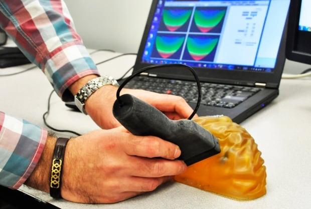 SFU cancer detector