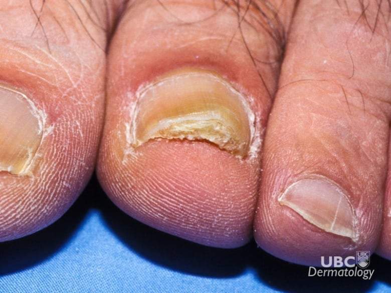 What That Weird Dent Or Blotch On Your Nail Might Be Saying About