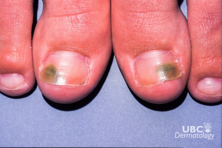 What that weird dent or blotch on your nail might be saying about ...