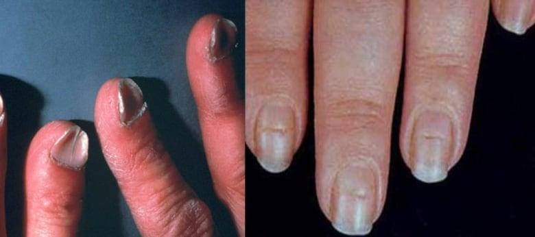 light black line on fingernail - 780×346