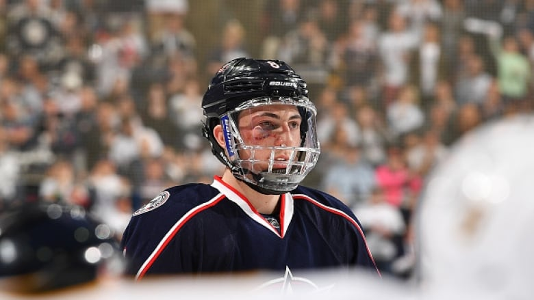 Blue Jackets Werenski Out For Balance Of Nhl Playoffs Cbc Sports
