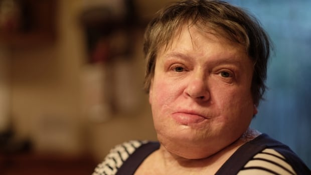 In May 2010, Wendy Soczek's husband sprayed her with gasoline and lit her on fire. She spent nine weeks in a coma, and when she woke up, she learned her insurance company wouldn't cover the damage to her home.