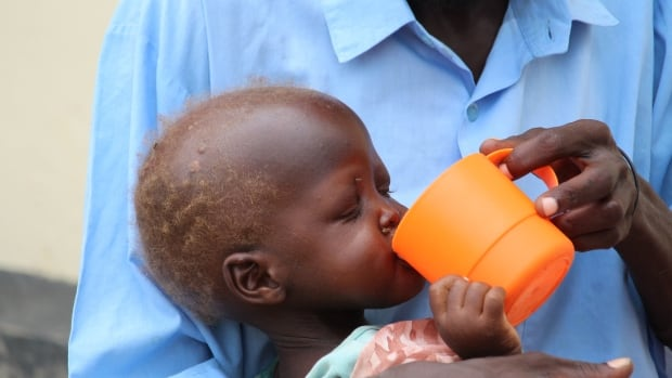 A father feeds his starving young son in Juba, South Sudan. A Winnipeg woman has organized a fundraiser to try to help people in the country, which is ravaged by both famine and civil war.