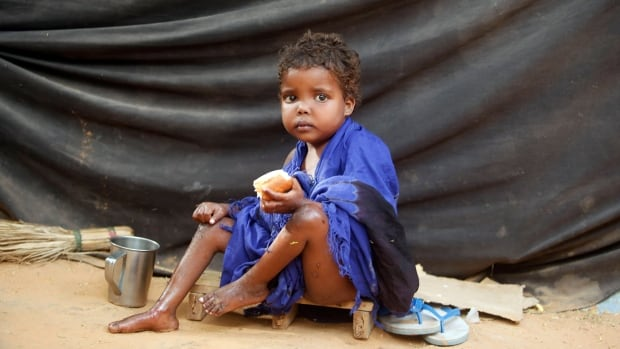 Number of Malnourished Children in Somalia Rising