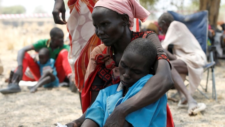 hunger in south sudan Analysis - a man-made famine that question has been on the lips a lot in recent days after it was declared in south sudan the last time this happened in africa, or anywhere, was in somalia.