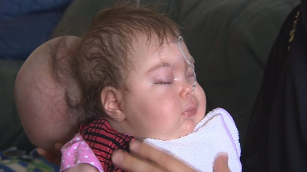 Baby Ebar was born in Winnipeg with a rare birth defect that left her brain outside her skull