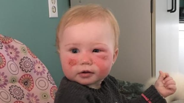 Complaints about the sunscreen include an allegation that it caused 14-month-old Kyla Cannon in Botwood, N.L., to develop a facial burn and blisters.