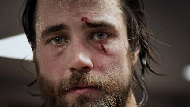 Swedish defenceman Victor Hedman suffered a laceration under his left eye on Friday at the world hockey championship.