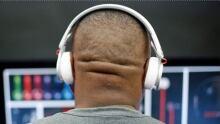 Sudden hearing loss