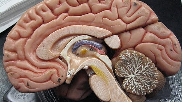 Scientists were surprised by what areas in the brain are activated when adults learn to read.