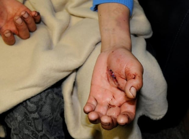 Angela Cardinal hand