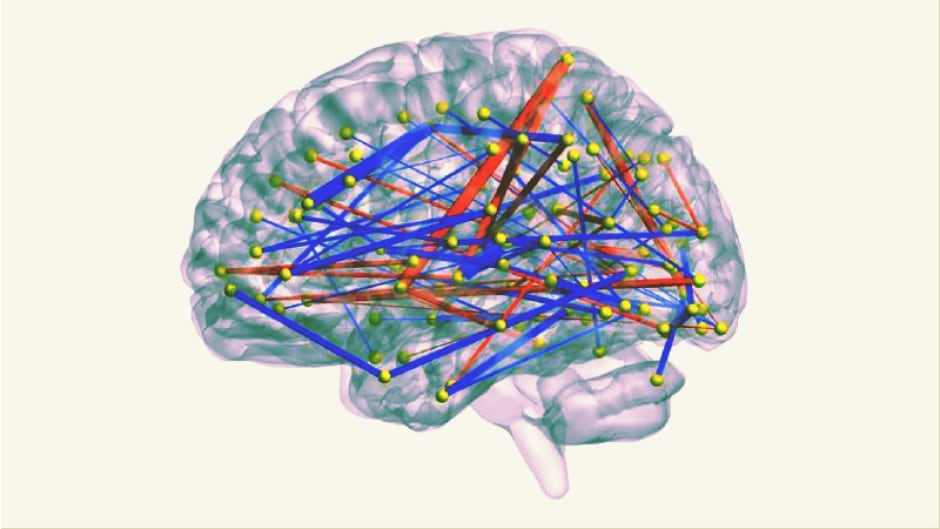 Researchers use MRIs to make connections between brain regions to predict which high-risk infants will develop autism.