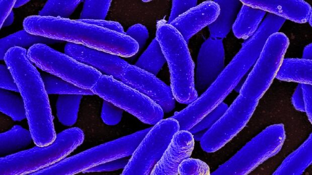blue bacteria