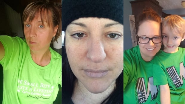 (From left to right) Candace Uhlik, Marilyn Hamoline and Tera Hunter live in Sask., all say they contracted Lyme disease in Saskatchewan