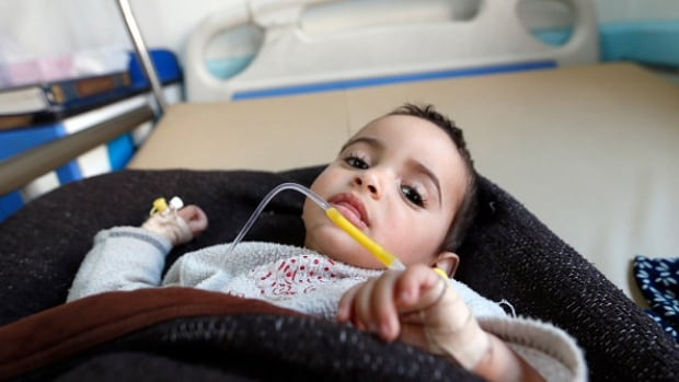 A Yemeni child suspected of being infected with cholera receives treatment at Sabaeen Hospital in Sanaa. Yemen is struggling with its second outbreak of the deadly disease in less than a year.