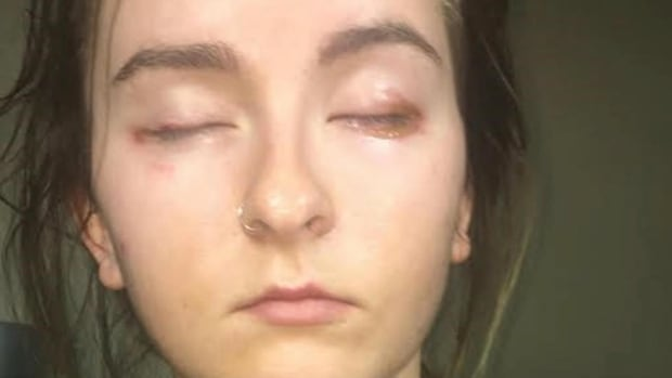 Fort Saskatchewan teenager Alexis Bizuk says she had a severe allergic reaction to eyelash extensions applied by an untrained technician.