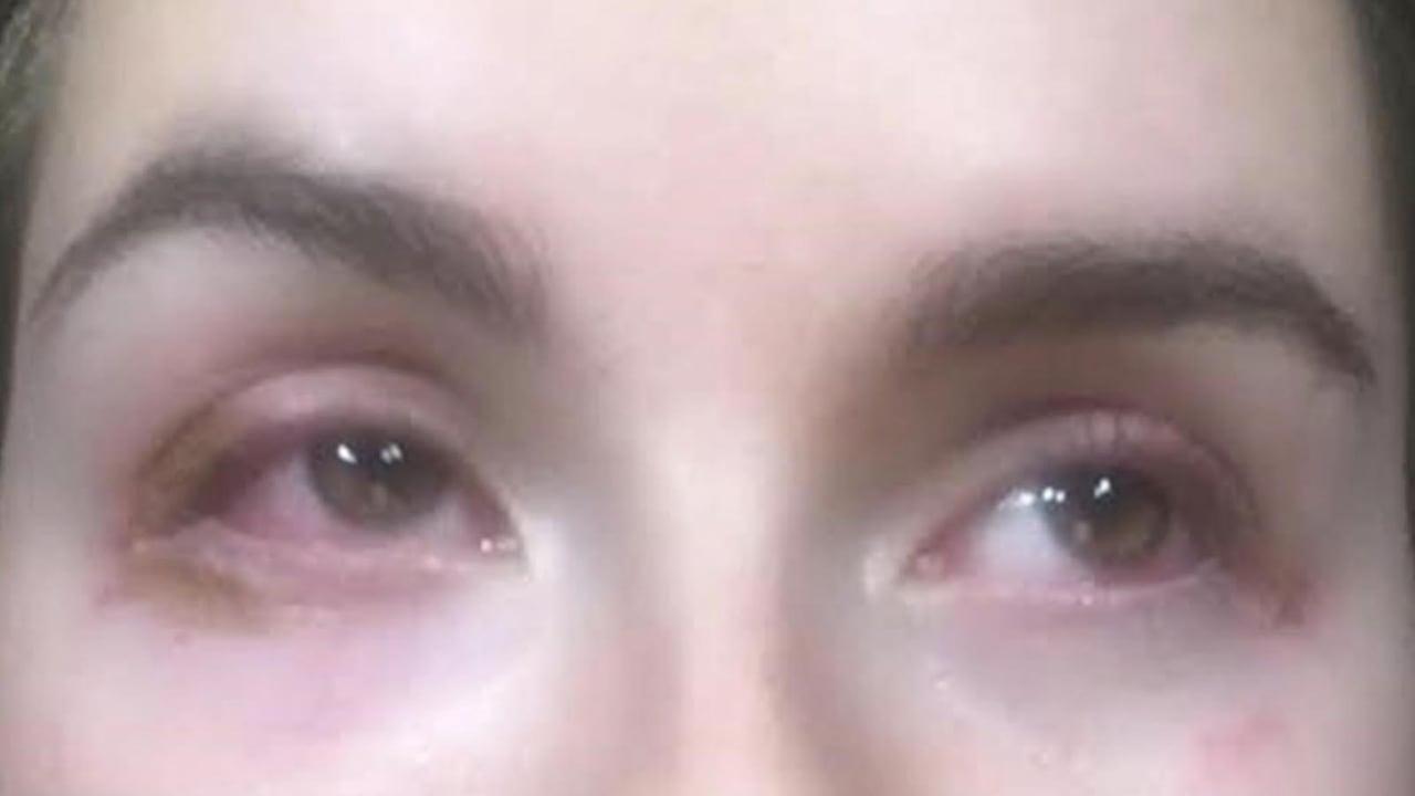 6f7545b3677 Botched eyelash extensions leave Alberta teen's eyes swollen, burned | CBC  News