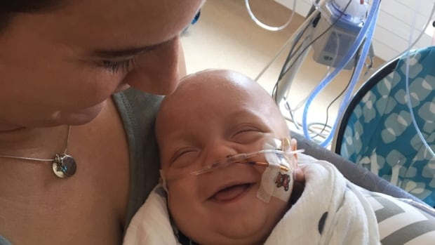Brody Unrau was born 15 weeks premature but he's been defying the odds every step of his short life, says his mom, Randi.