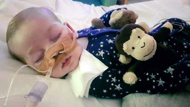 Charlie, 11 months old, suffers from mitochondrial depletion syndrome, a rare genetic disease that has left him brain-damaged and unable to breathe unaided. His parents have been locked in court battles to get him experimental treatment in the U.S.