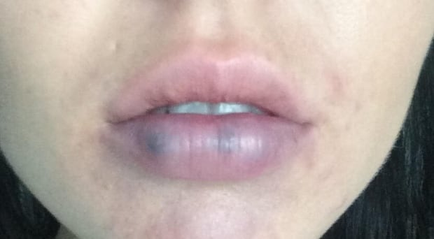 lip-after-treatment