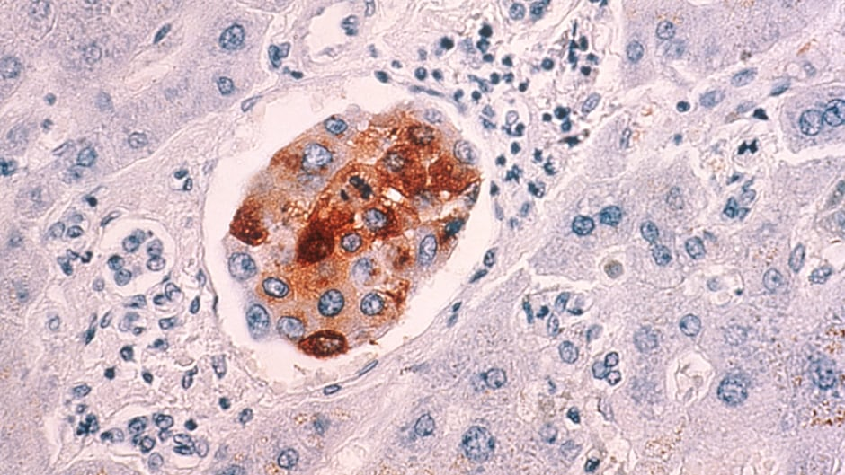 The malignant breast cancer cells metastasized to the liver. Scientists have discovered the signaling process that causes densely packed cancer cells to break away from a tumor and spread the disease elsewhere in the body.
