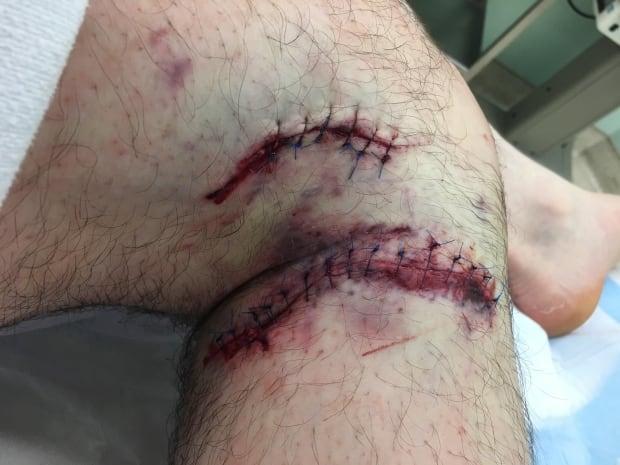 bear attack injuries