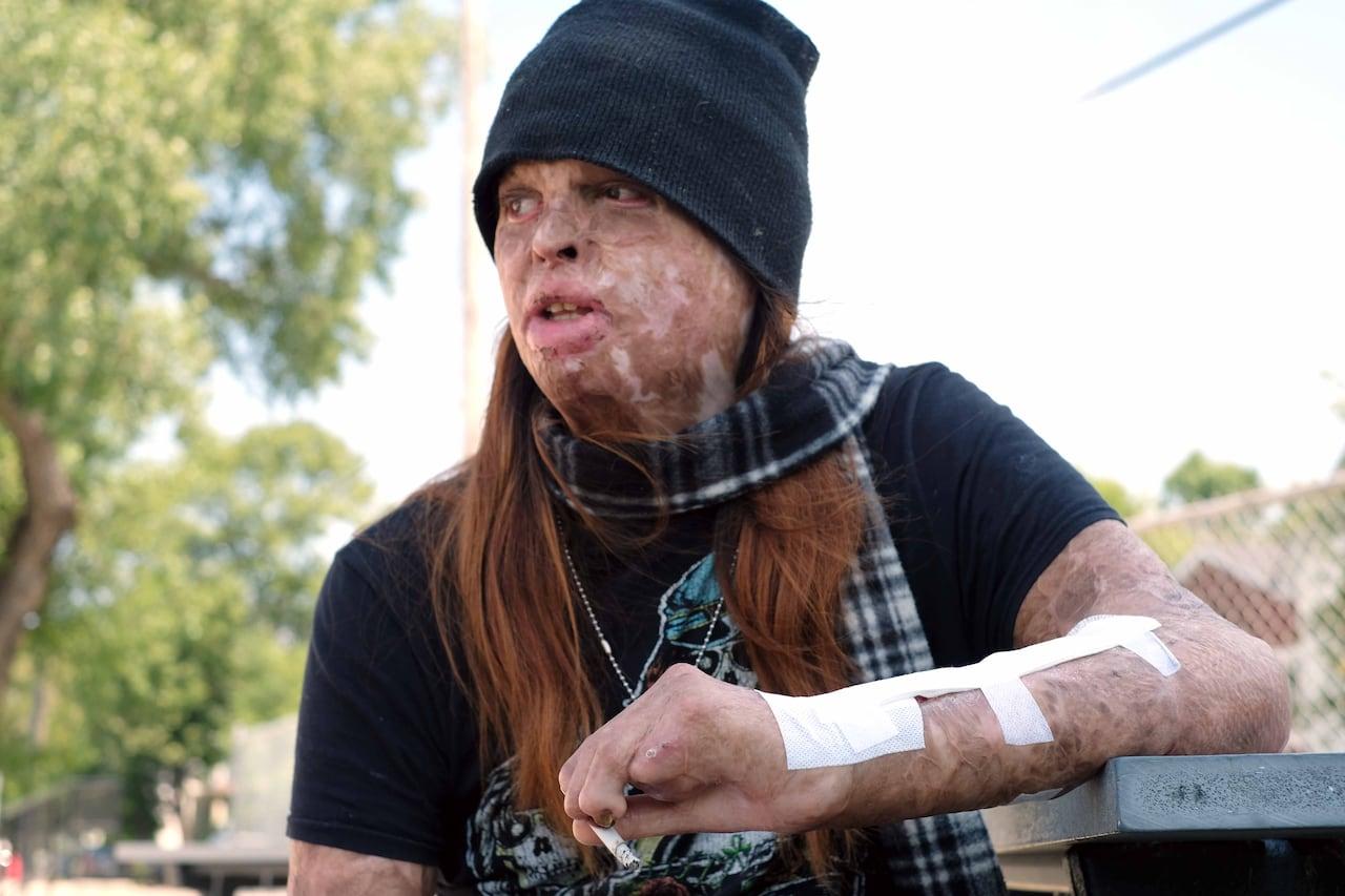 I still hear my own scream': Burn victim awaits sentencing