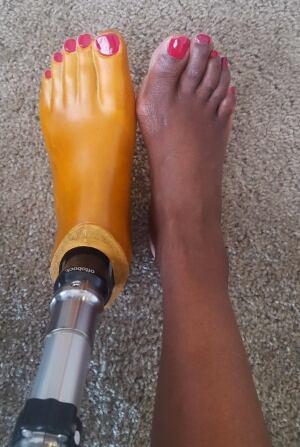 Wanjau prosthetic