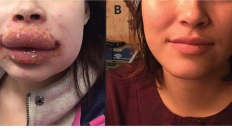 Severe allergic contact dermatitis due to Polysporin