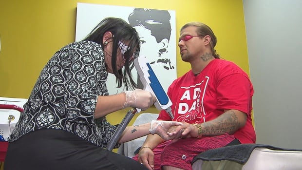 Ryan Kemash is having two gang tattoos removed because he says he no longer lives that lifestyle.