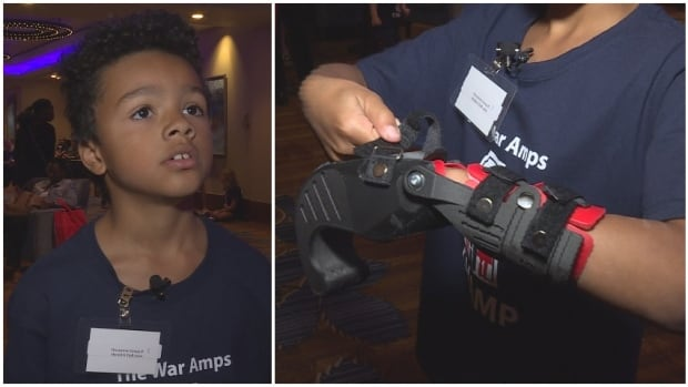 Ace Assine, 7, shows off his prosthetic hand during the War Amps CHAMP Camp in Calgary.