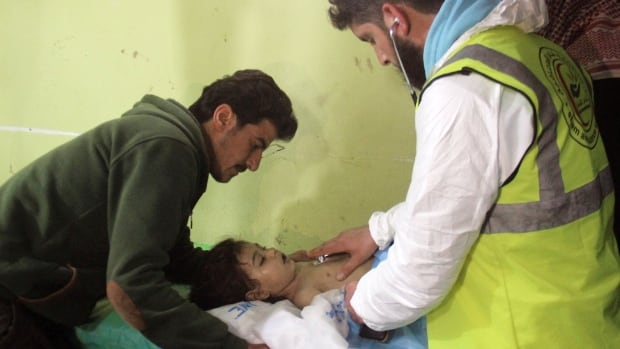 An unconscious Syrian child is treated at a hospital in Khan Sheikhun, a rebel-held town in the northwestern Syrian Idlib province, after a suspected toxic gas attack on April 4.