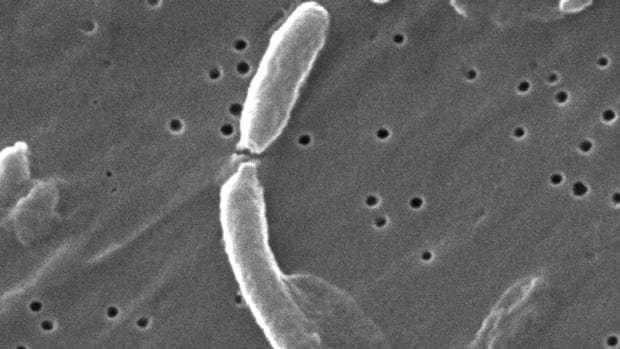 A scanning electron microscopic image depicts two Vibrio cholerae bacteria as they were about to separate after having undergone cellular division.